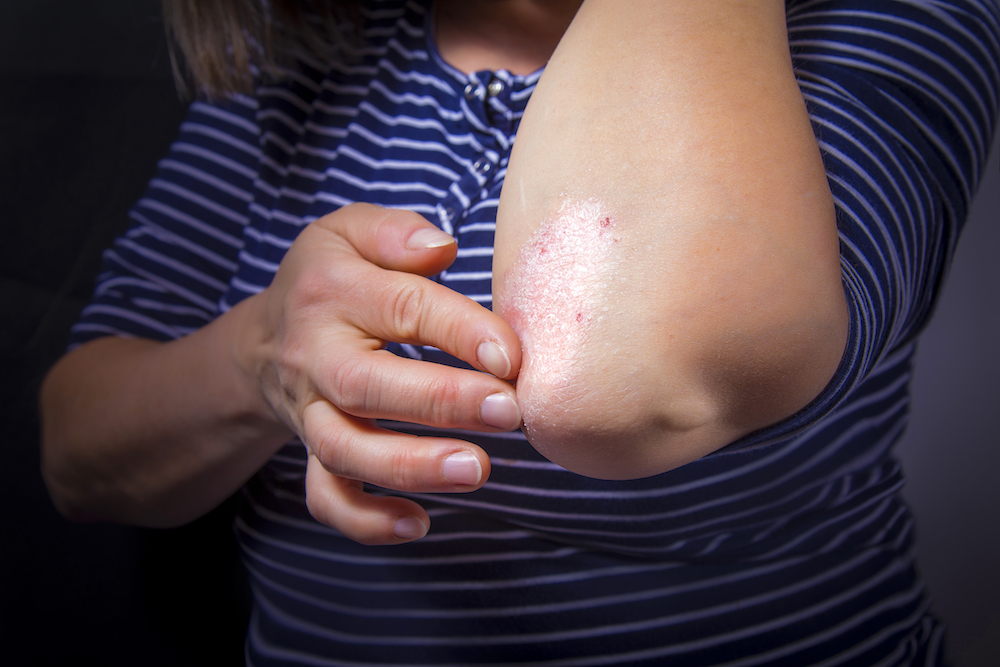Skin Disorder Can Be Associated With All Vascular Disease