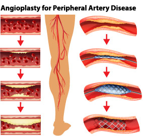 Angioplasty of Peripheral Artery Disease