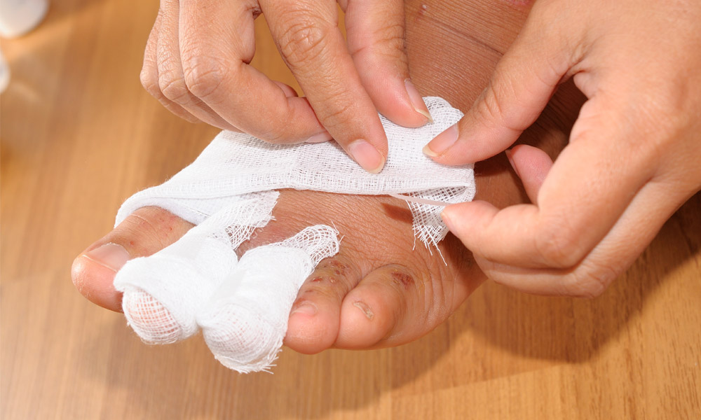 Symptoms of PAD - Toenail infections