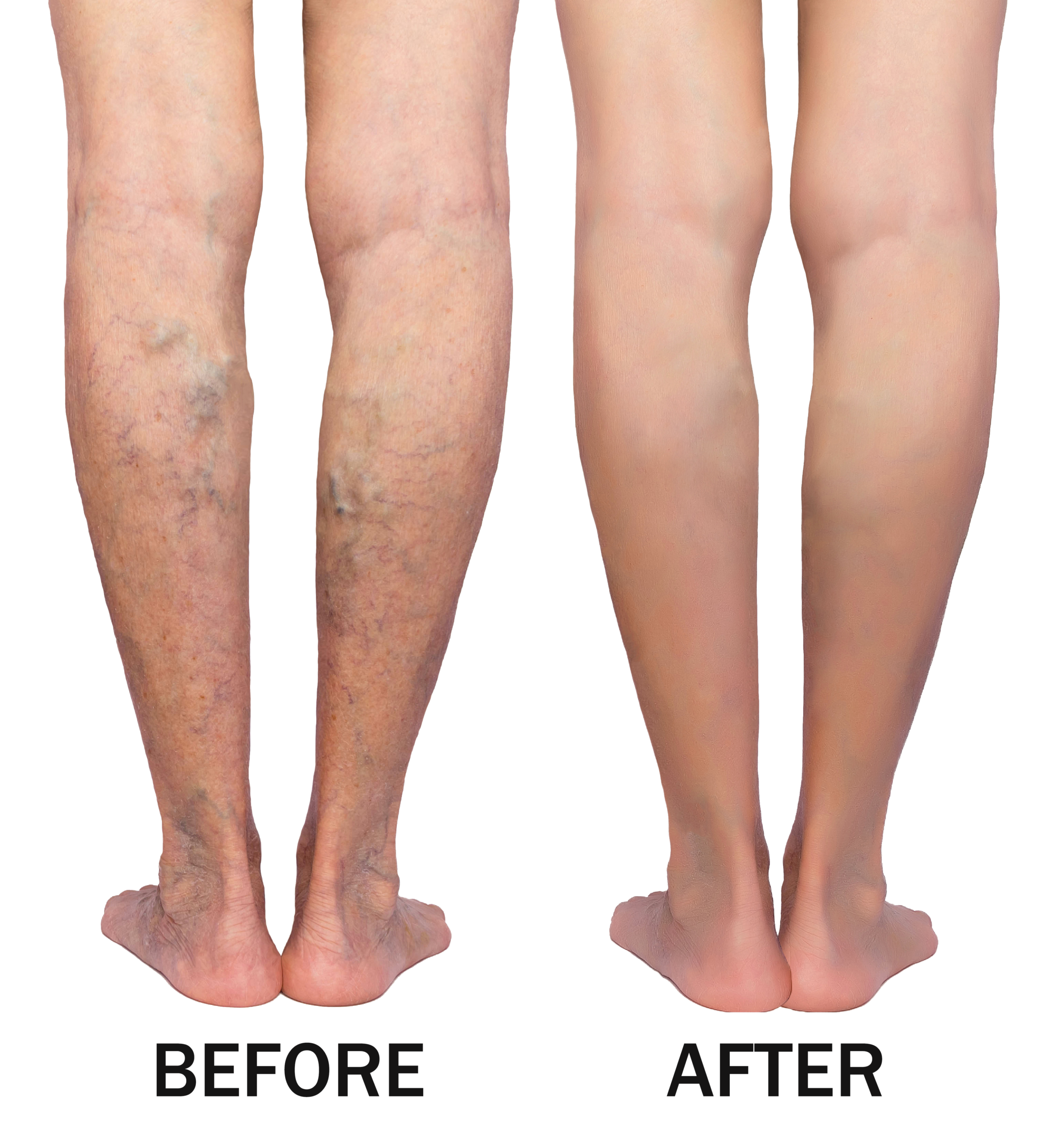 Varicose Veins Before & After